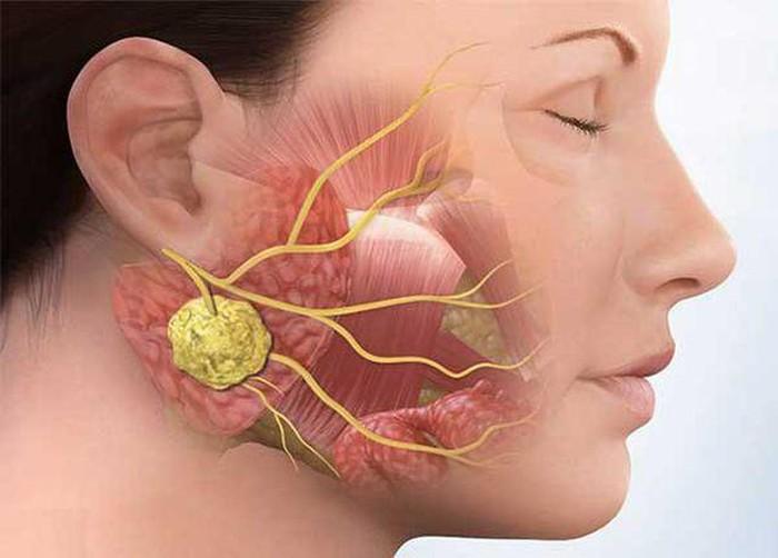 Bệnh nhân xuất hiện các hạch to trên cơ thể