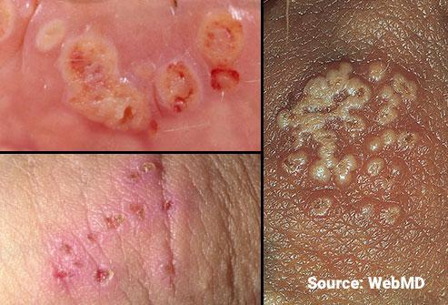 webmd_rm_photos_of_herpes_blisters