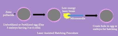 Laser Assisted Hatching At IVF Center In Jaipur -  Mishka IVF