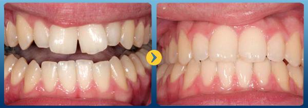 Niềng răng Invisalign là gì và những điều bạn cần biết 1