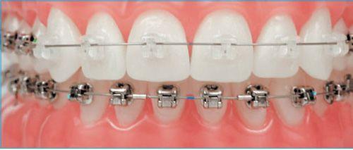 Niềng răng gián tiếp: rút ngắn thời gian lên đời nhan sắc