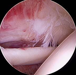 partial_rotator_cuff_tear-1