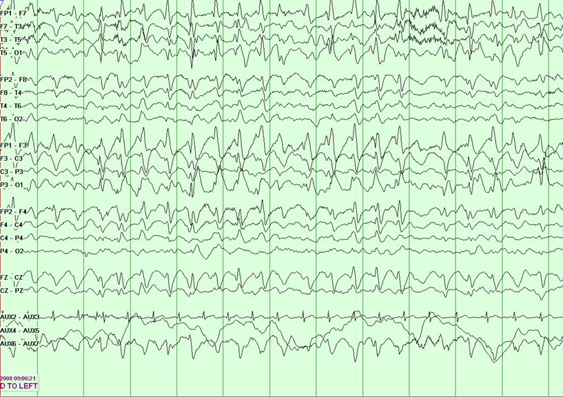 天使综合征的患者其脑电波呈现典型的双正向主波,2-3Hz的棘,以及慢波放电。