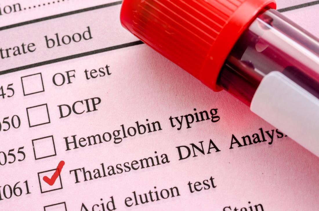 Image result for thalassemia test