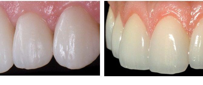 Bọc răng toàn sứ giá bao nhiêu - Bảng giá cập nhật mới 1