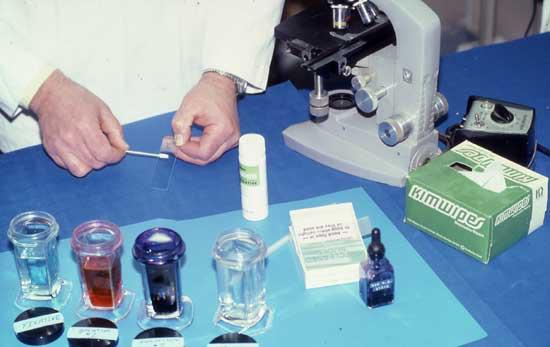 Transferencia del material del hisopado vaginal al portaobjetos en preparación para la tinción de la citología vaginal con un conjunto de tinción para hematología de Wright Giemsa modificada