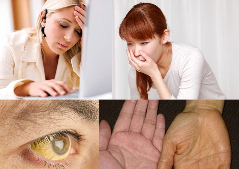 Triệu chứng của viêm gan virus D
