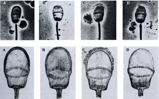 (A). Acrosome membrane normal, (B). Acrosome membrane amended, (C). Early detachment and (D). Total acrosome membrane separated. (Courtesy of Prof. Dr. K.F Weitze, Hannover-Germany).