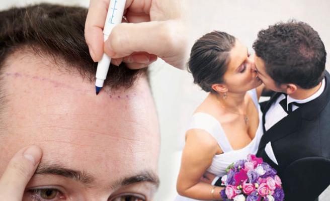 Evlilik hazırlığında saç ekimi