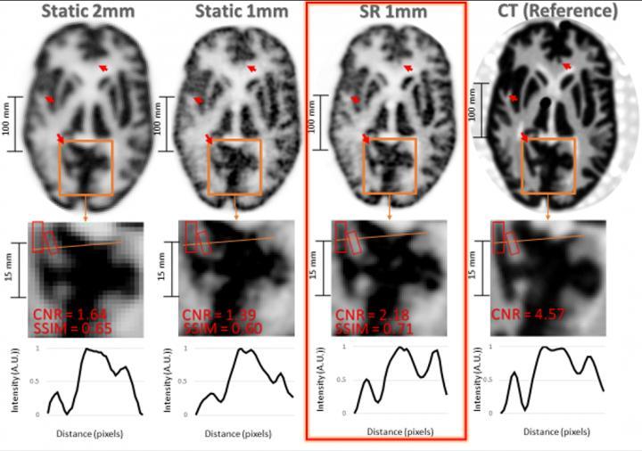 Comparação entre imagens obtidas com diferentes métodos aplicados. (Fonte: Yanis Chemli/The Gordon Center for Medical Imaging at Massachusetts General Hospital (MGH)/Reprodução)