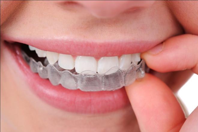 Đặc điểm và quy trình của chỉnh nha (niềng răng) bằng khay Invisalign