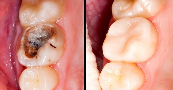 Trám răng khoảng bao nhiêu tiền cho răng chắc khỏe? 1