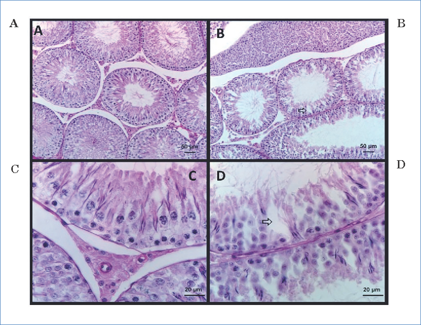 Cross-section photomicrograph of rat testicle, in which seminiferous tubules are observed. A and C, control treatment with oil; B and D show images of the right testicle, coumestrol treatment, which induces a cell diversity decrease, as well as inhibition of some phases of the seminiferous epithelium. In addition, a clear increase in intracellular space is observed (modified from Tarragó et al., 2006).