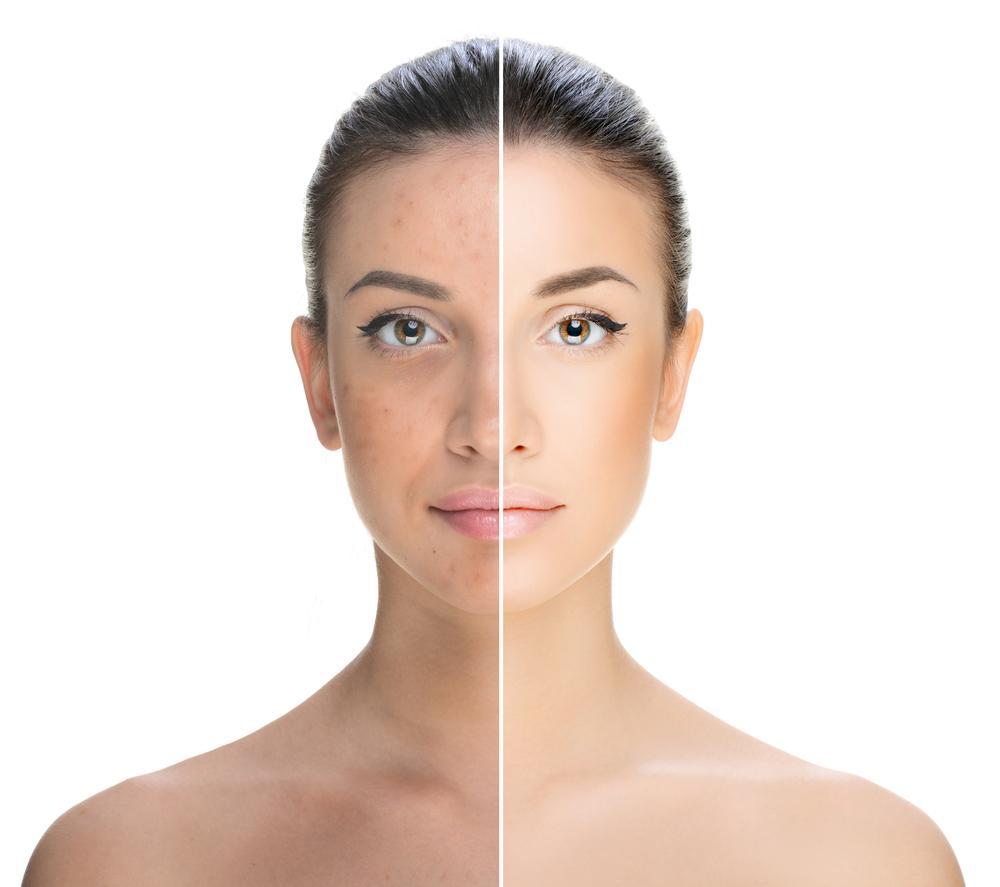 age-spots-on-face1.jpg