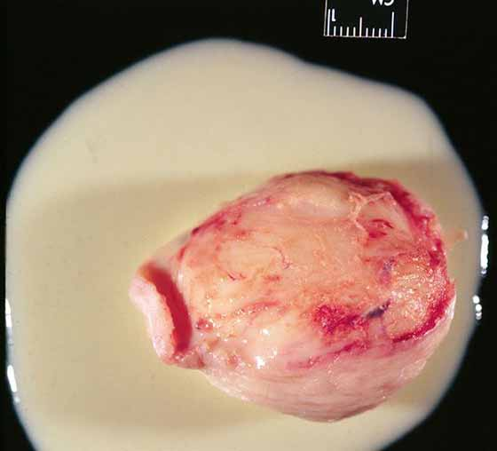 The content of this subepiglottic cyst was typical, a viscous, creamy colored fluid.