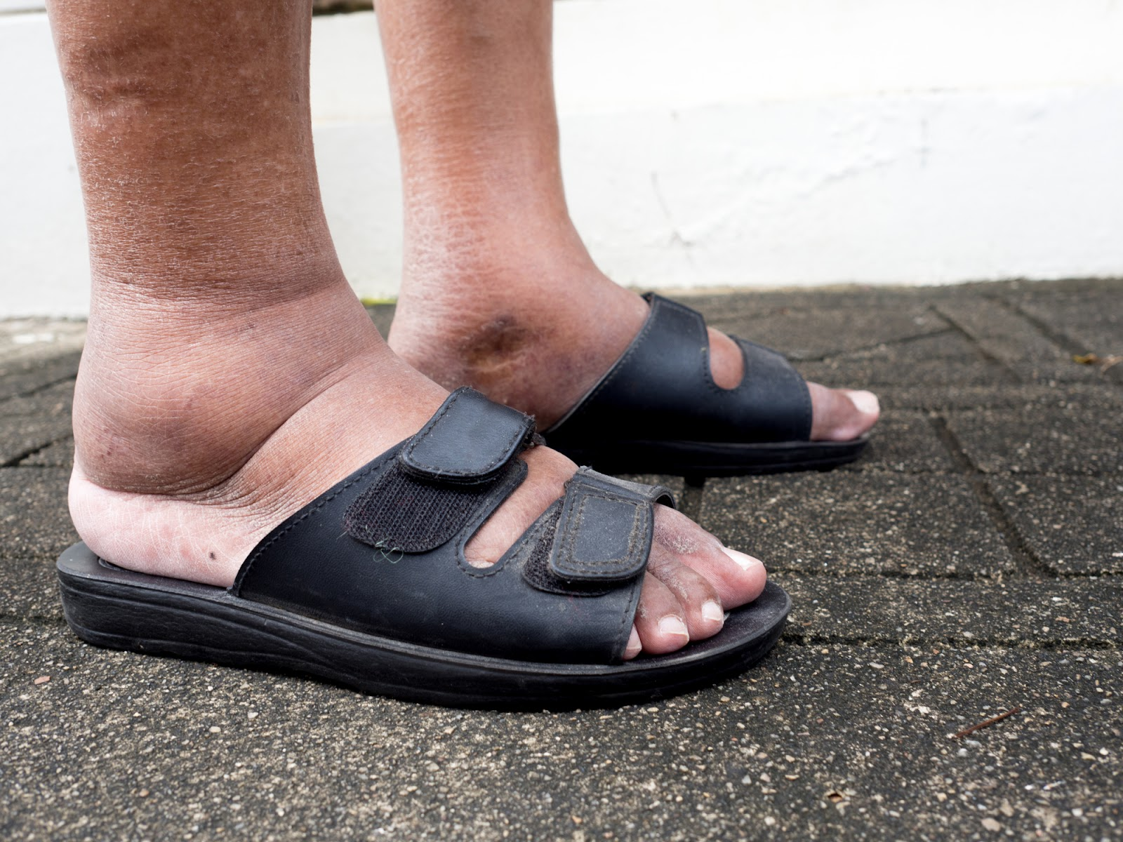 Shoes for swollen feet
