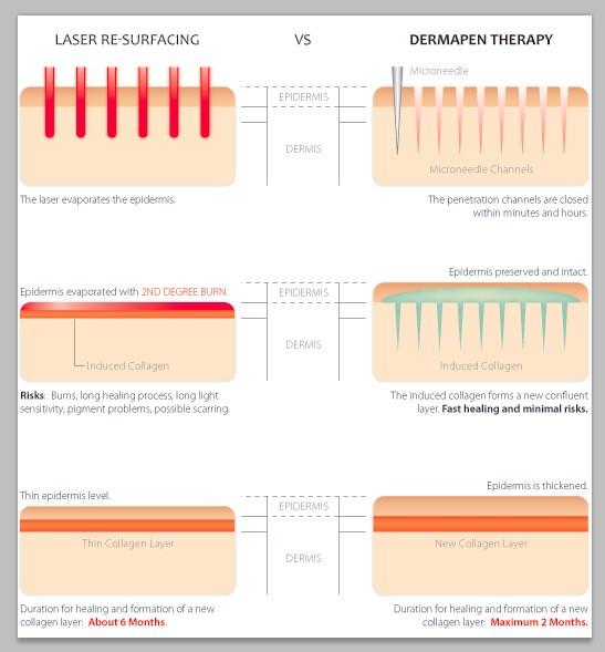 Phương pháp laser kích thích làn da phục hồi nhanh chóng nhưng đồng thời gây tổn thương trên bề mặt da và khiến da bị bào mỏng