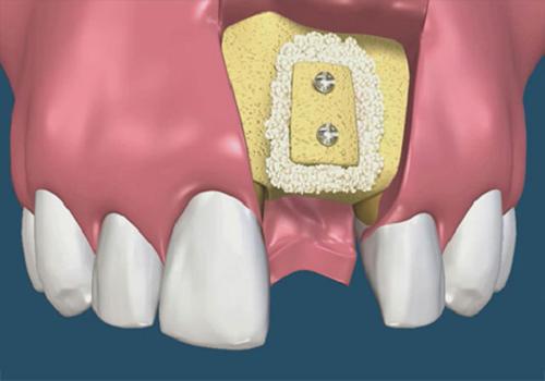 Thời gian trồng răng Implant mất bao lâu và khi nào thì phải làm lại? 1