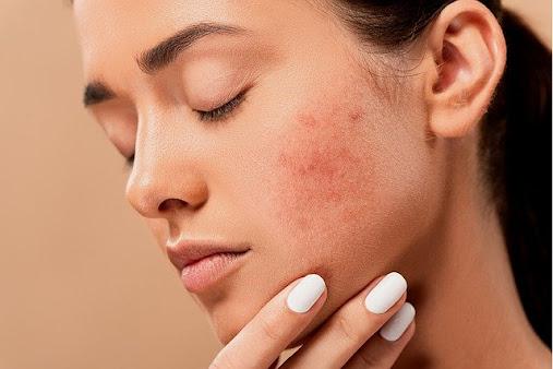 Remedios naturales para el acne