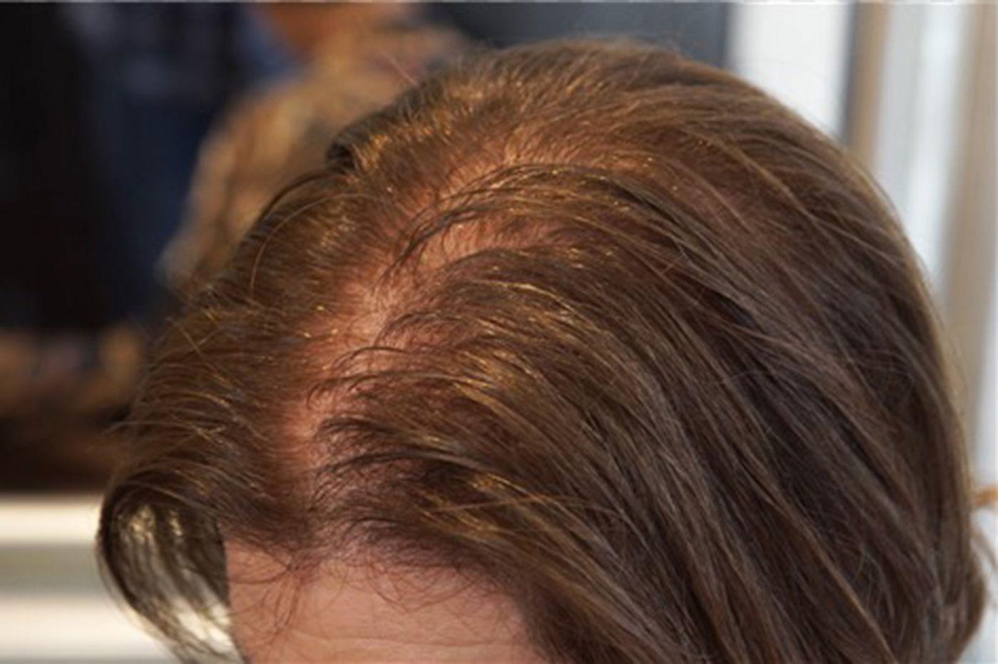 hair loss in women5.jpg