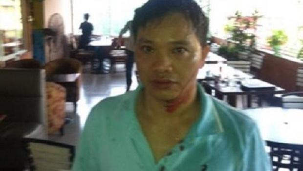 Luật sư Nguyễn Văn Đài bị hành hung