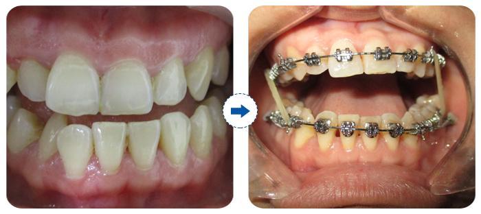 Địa chỉ nha khoa niềng răng nào được khách hàng tin tưởng nhất? 1
