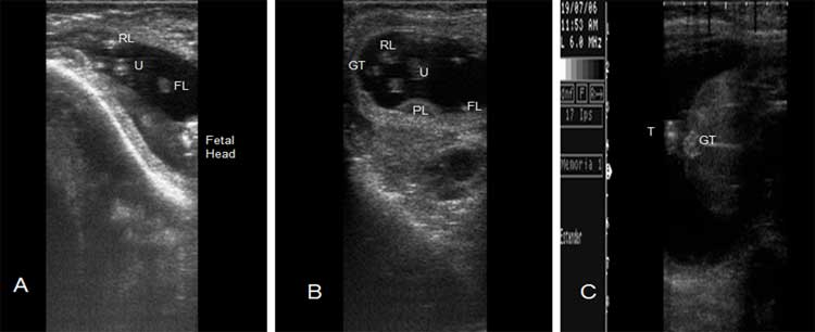 A. Reproductive ultrasound of a bubaline fetus for gender determination by Day 60 of gestation. 26 B and 26 C. Female fetus at Day 60 and 90 of gestation. Rear leg (RL), front Leg (FL), Genital Tuberculum (GT), Umbilicus (U), Tail (T).