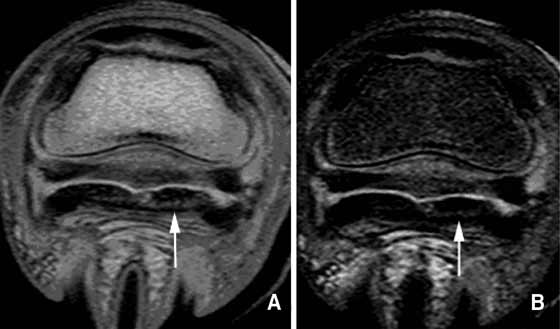 (A) Proton density and (B) STIR images of a foot with multiple areas of abnormality acquired using an ONI OrthOne (1.0 T).