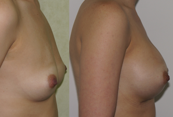 5 Ways To Enhance The Appearance Of Your Breasts