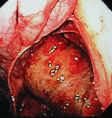 An ethmoid hematoma confined to the sinus as viewed from a frontal sinoscopy approach.