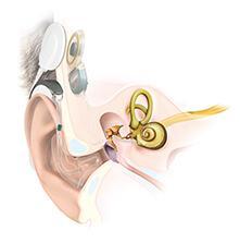 MED-EL   Implantes cocleares para perda auditiva