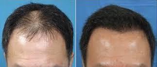 saç ekimi sonrası ve öncesi görüntüsü