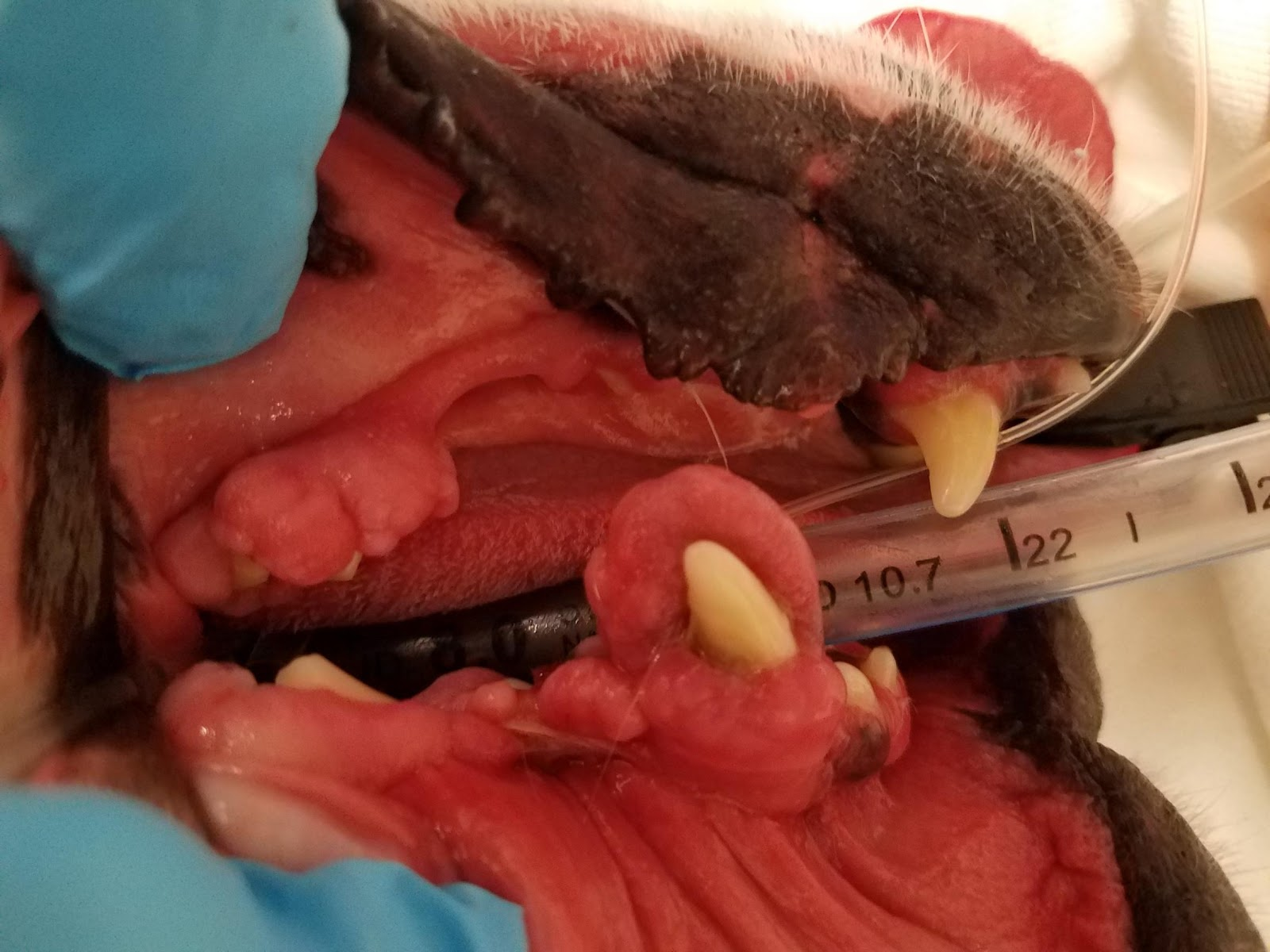 \\WDMYCLOUDMIRROR\SSVC_Storage\Lectures\NEVMA Lectures\Images\Gingival Hyperplasia Pictues\20180908_103311.jpg