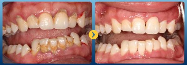 Tác dụng của việc lấy cao răng định kỳ - Nha Khoa Bally