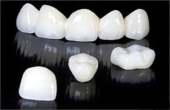 (???) Tìm hiểu răng sứ CERCON và răng sứ ZIRCONIA loại nào tốt