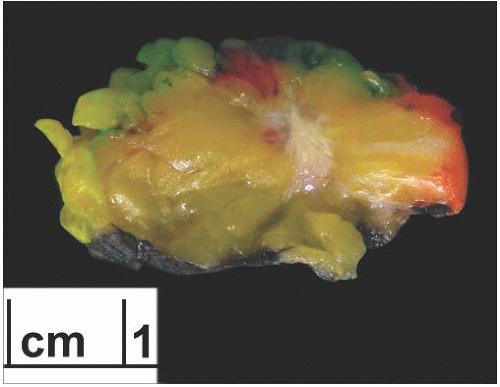 Image result for tUBULAR CARCINOMA GROSS