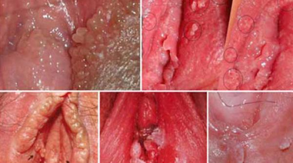 ngứa môi lớn vùng kín do bệnh sùi mào gà