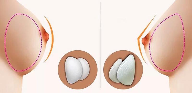 Resultado de imagen para protesis redondas y anatomicas