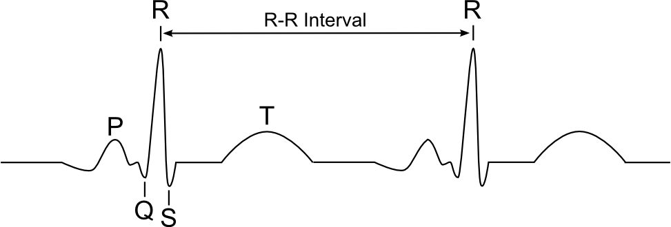 File:Ecg.png - Wikimedia Commons
