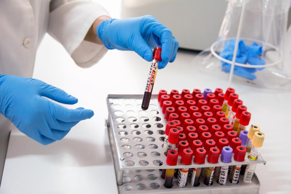 Não se pode afastar a probabilidade de novas pandemias em um cenário próximo. (Fonte: Alex Skachkov/vShutterstock)