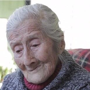 Mujer descubre feto calcificado en su vientre después de 60 años