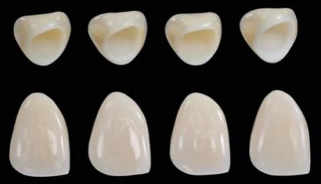 Bọc răng sứ có nguy hiểm không - Chuyên gia nha khoa giải đáp 1