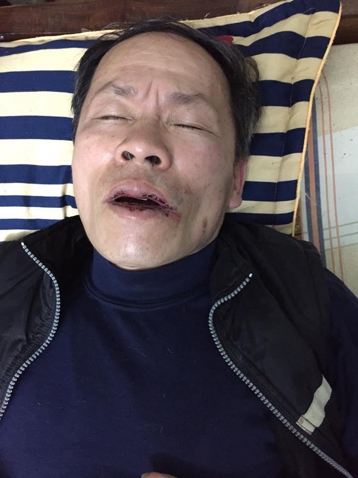 Trương Văn Dũng