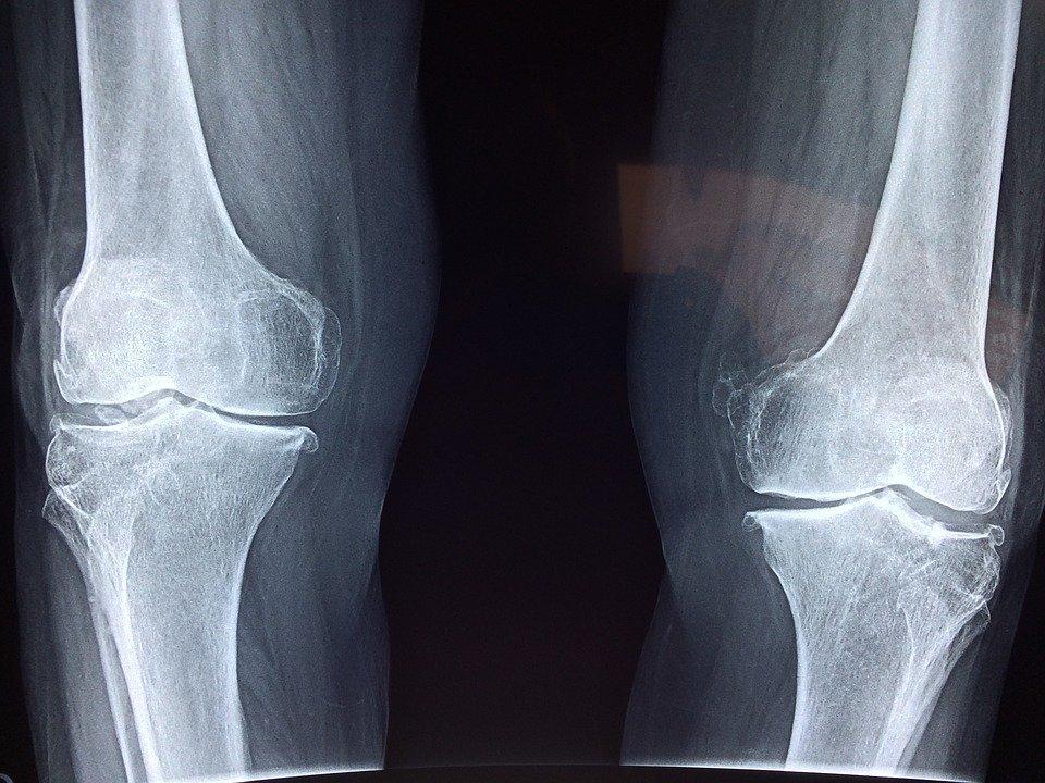 Knee, X-Ray, Medical, Anatomy, Skeleton, Bone