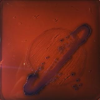 EMB+ Pseudomonas stutzeri (peu développée) + Serratia marcescens (colonies roses/grisâtres) + Escherichia coli (colonies violettes foncées)