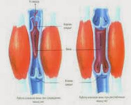 Тромбофлебит лечение