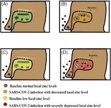 Intra‐nasal zinc level relationship to COVID‐19 anosmia and type 1  interferon response: A proposal - Equils - 2021 - Laryngoscope  Investigative Otolaryngology - Wiley Online Library