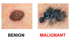 Image result for melanoma