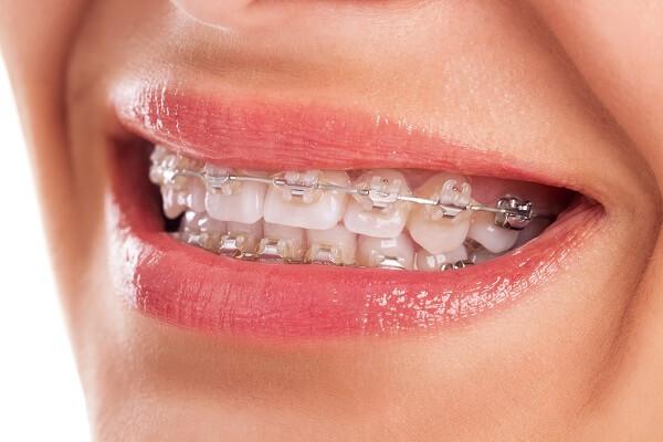 Giải pháp nắn chỉnh răng vẩu có hiệu quả khi nào? 1