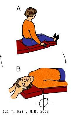 Dix-Hallpike test for BPPV